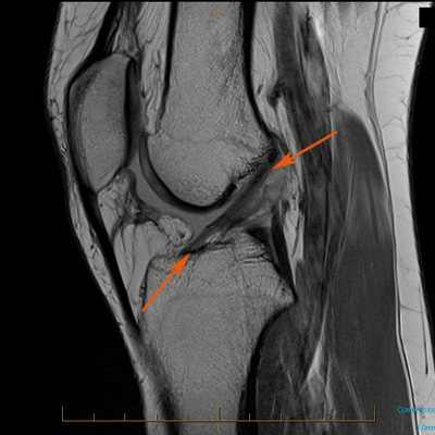 Mri-knee-injury-acl-a.jpg