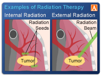 Radiation Side Effects And Syndromes Physiopedia