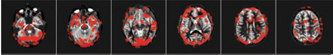 FMRI row 2.png