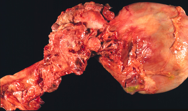 Necrotic pancreas