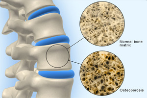 Picture to show normal and osteoporotic bone
