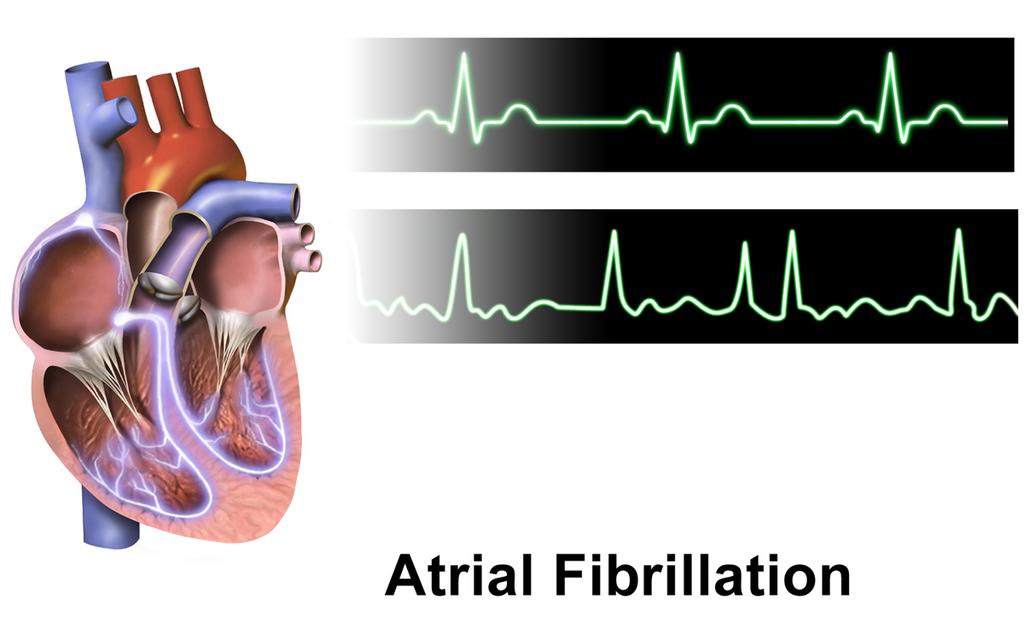 causes of afib
