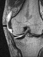 MRI for MCL tear.jpg