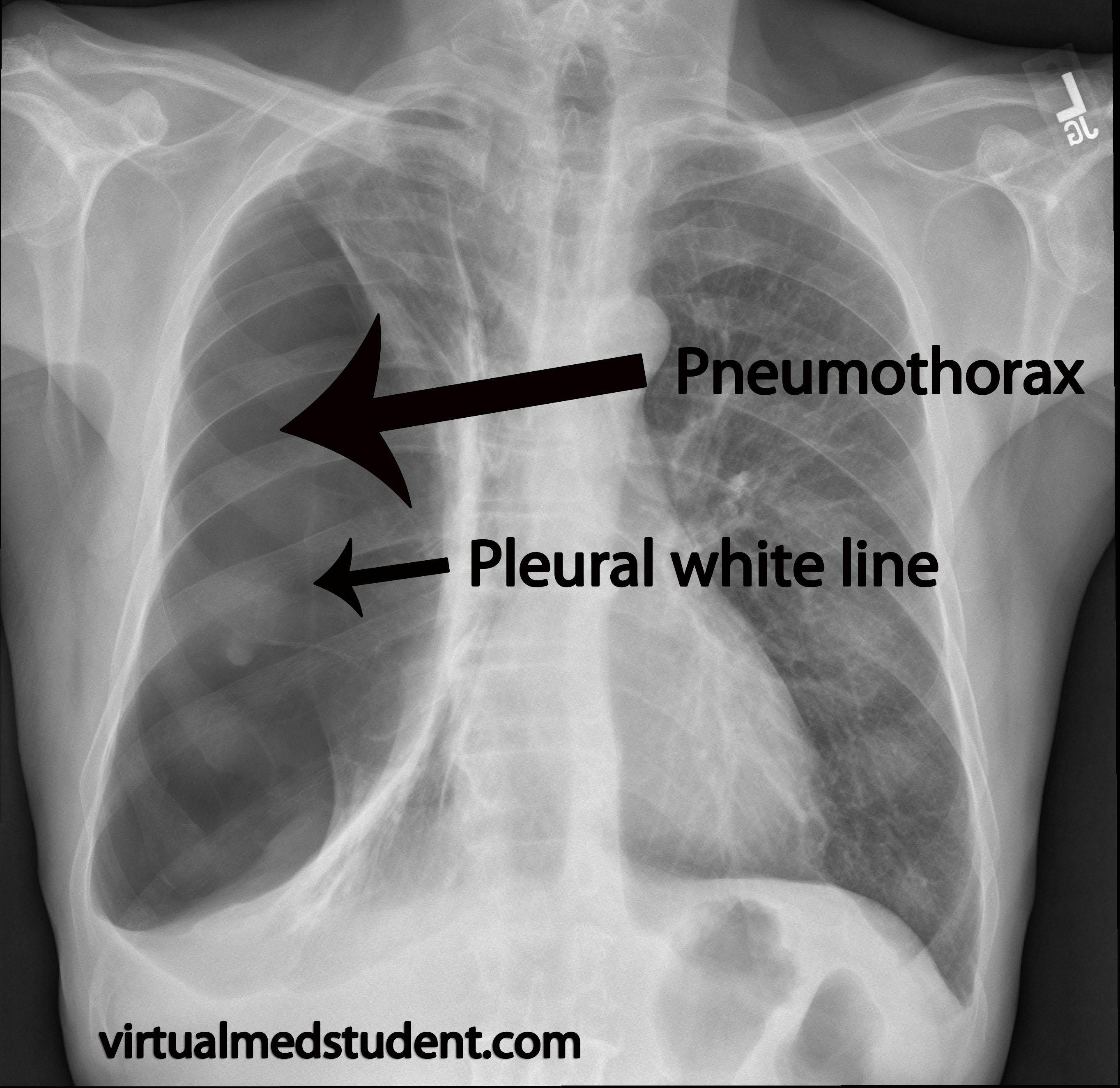 tension pneumothorax x ray - HD2727×2649