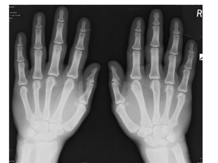 Normal Hand Xray To the normal population X Ray Definition