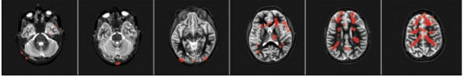 FMRI row 3.png