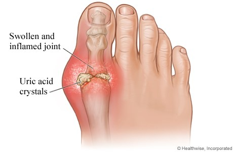 surgical treatment for gouty arthritis what causes gout toe gout relief homeopathic