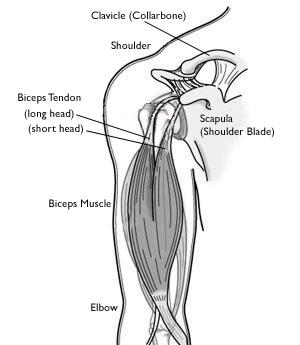 rupture long head biceps
