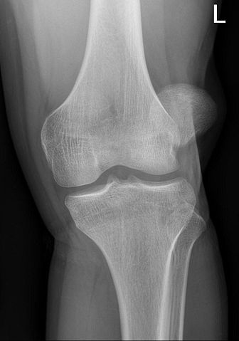 patella malalignment