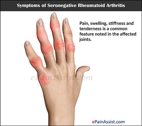 Poliartrita reumatoida seronegativa: diagnostic si caracteristici