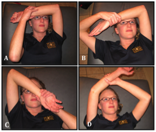 Postero-lateral Elbow Instability - Physiopedia