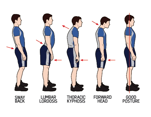 Adolescent Back Pain - Physiopedia