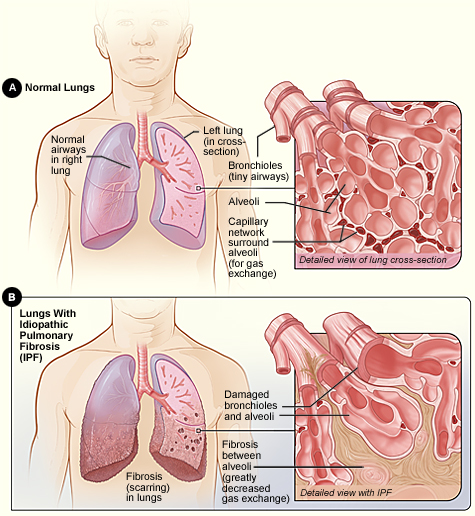Normal Lung vs Lung affected by IPF