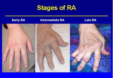 Plastic Surgery Ucsf Edu Conditions Procedures Rheumatoid Hand Disorder Surgery Aspx