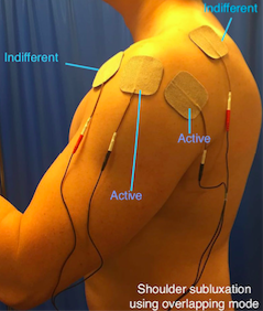 Shoulder subluxation using overlapping mode Picture.png