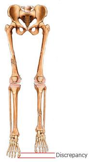 Leg Length Discrepancy - Physiopedia
