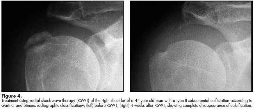 Calcific Tendinopathy Of The Shoulder Physiopedia