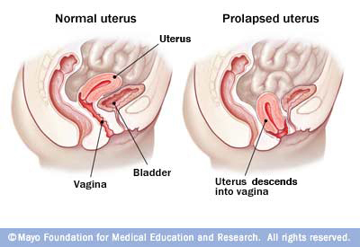 Uterine Prolapse - Physiopedia