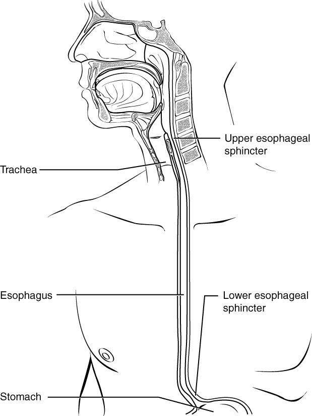 Gastroesophageal Reflux (GERD) Picture Image on MedicineNet.com