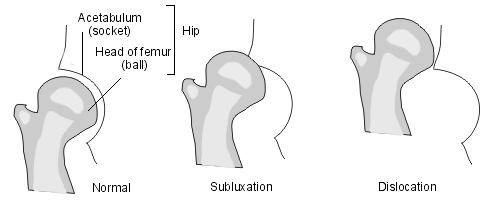 Hip dislocation1.png