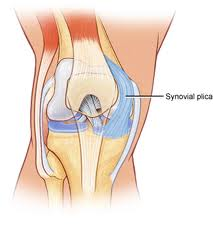 Plica syndrome physiopedia a synovial plica is a shelf like membrane between the synovium of the patella and the tibiofemoral joint plicae essentially consist of mesenchymal tissue ccuart Image collections