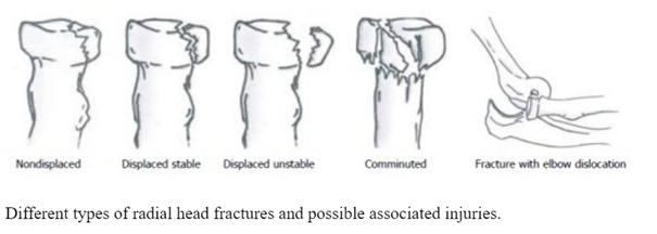 Radial Head Fracture Physiopedia