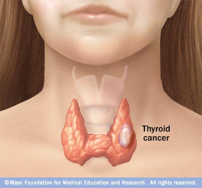 Thyroid Cancer Physiopedia