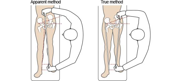 Fibular hemimelia diagram