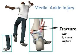 Fracture with eversion injury.jpg