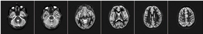 FMRI row 1.png