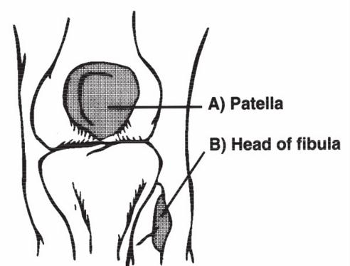 Areas of interest when palpating for the Ottawa Knee Rules