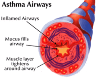 Asthma airways.png