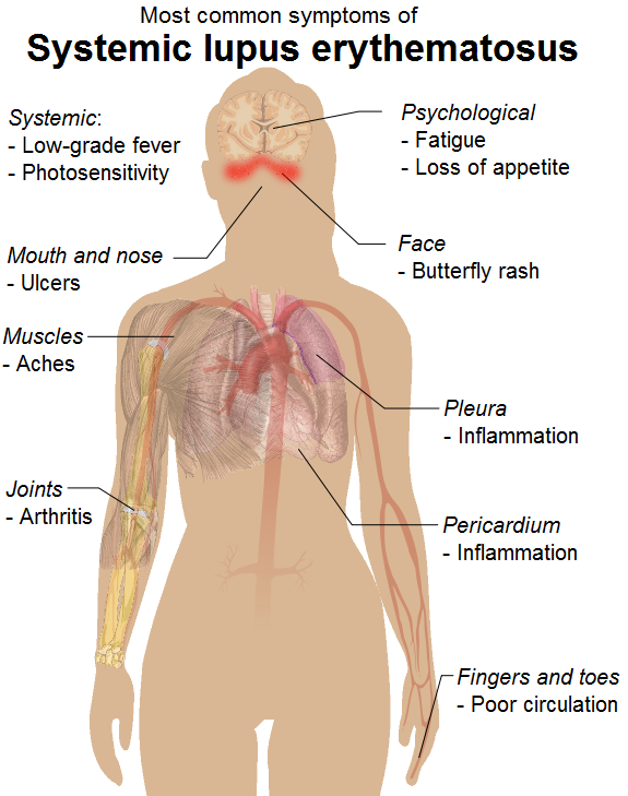systemic lupus erythematosus case study - physiopedia, Skeleton