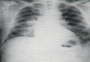 Primary Syphilis Rash Tularemia - Physiopedi...