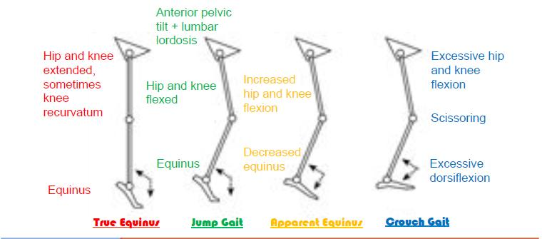 Classification of CP gait .jpg
