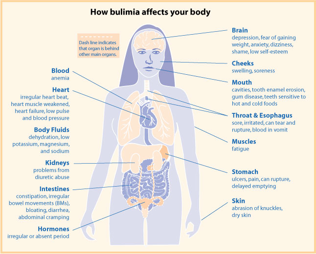 a introduction into causes and effects from bulimia Bulimia affects more than your physical body it also causes mental and  emotional stress learn more about the effects of bulimia with this graphic.