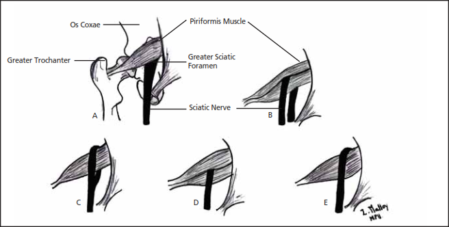 Relationship of Sciatic nerve to Piriformis