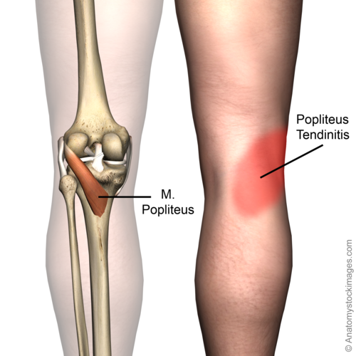 Popliteus Tendinopathy - Physiopedia