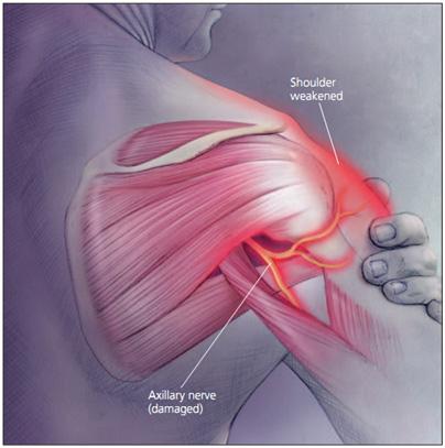 Axillary Nerve Injury - Physiopedia