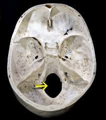 Yellow arrow indicates the foramen magnum.