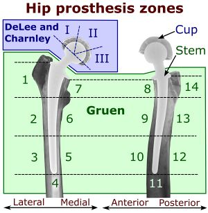Hip prosthesis zones by DeLee and Charnley system, and Gruen system.jpg