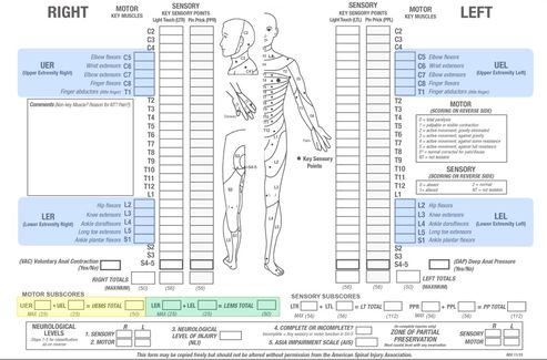 American Spinal Cord Injury Association (ASIA) Impairment