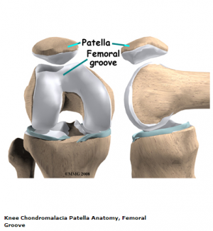 Femoral groove.png