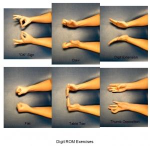 Hand Exercises Physiopedia