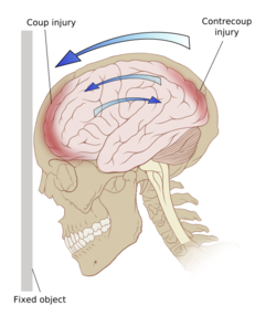 Traumatic Brain Injury - Physiopedia