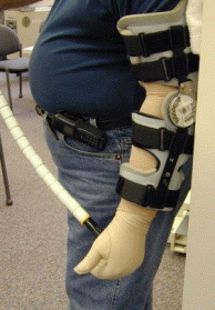 Hinged splint with ROM block for flexion used following distal triceps repair