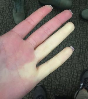 Raynaud's Phenomenon - Cedars-Sinai