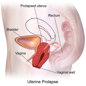 Pelvic Organ Prolapse - Physiopedia