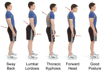 Examples of Different Postures
