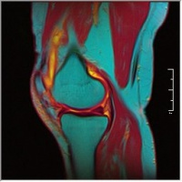 False Colour Knee MRI